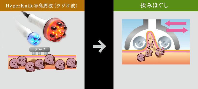 3つのこだわりポイント 遠赤外線効果 マイナスイオン効果 デトックス効果