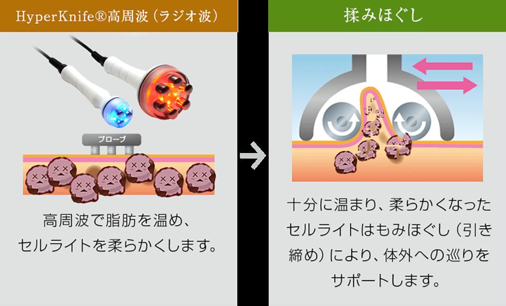 3つのこだわりポイント 遠赤外線効果 マイナスイオン効果 デトックス効果 高周波で脂肪を温め、セルライトを柔らかくします。十分に温まり、柔らかくなったセルライトはもみほぐし(引き締め)により、体外への巡りをサポートします。